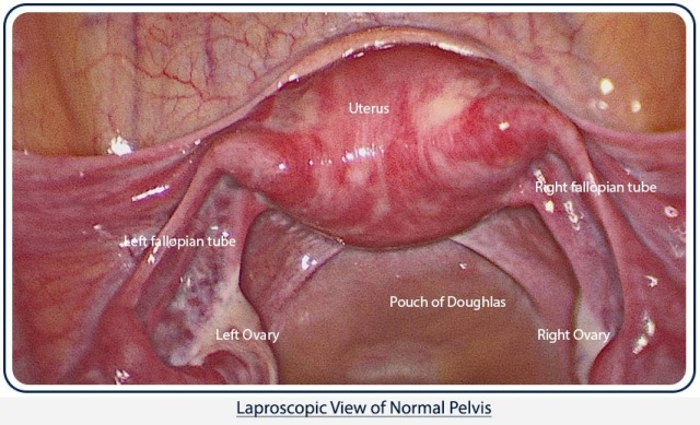 1 Normal Uterus with bilateral tubes and ovaries on diagnostic laparoscopy