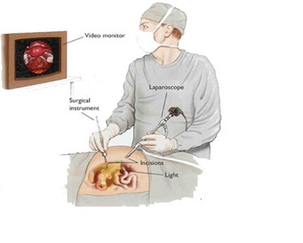 6-Surgeon performing laparoscopy