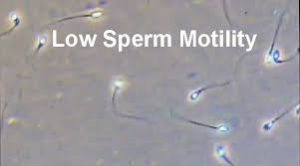Low Sperm Motility Treatment